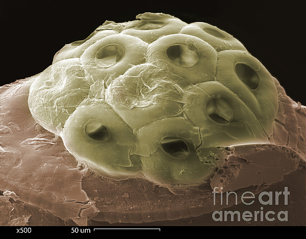 Scanning Electron Micrograph Photograph - Sem Of A Head Lice Eggs by Ted Kinsman