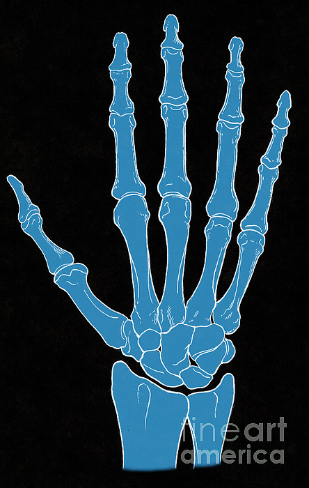 Science Photograph - Hand And Wrist Bones by Science Source