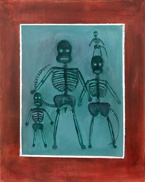 Randy Burns - X ray Sock Monkey Family