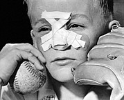 Bandages Prints - Fly Ball Gives Broken Nose Print by Underwood Archives