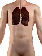 Smoker Posters - Smokers Lungs, Artwork Poster by Sciepro