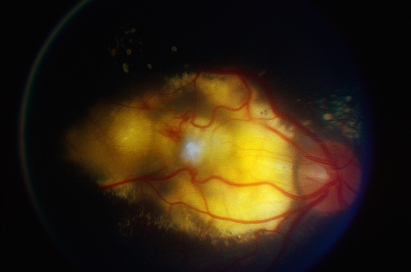 Blood Vessels Photograph - Coats Disease by Science Source