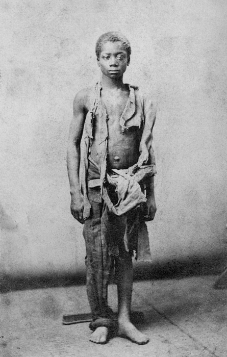 History Photograph - Young Slave During The Civil War by Everett