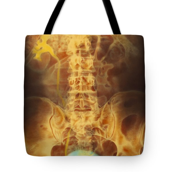 Full Bladder Color Xray Urogram Tote Bag by SPL and Photo Researchers