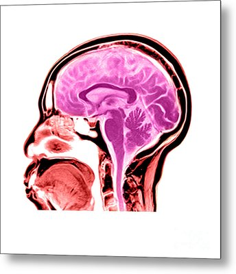 Sagittal View Of An Mri Of The Brain Metal Print by Medical Body Scans