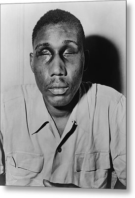 African American Man With Eyes Swollen Metal Print by Everett