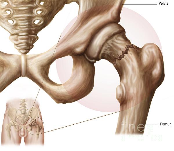 Healthcare Digital Art - Anatomy Of Hip Fracture by Stocktrek Images