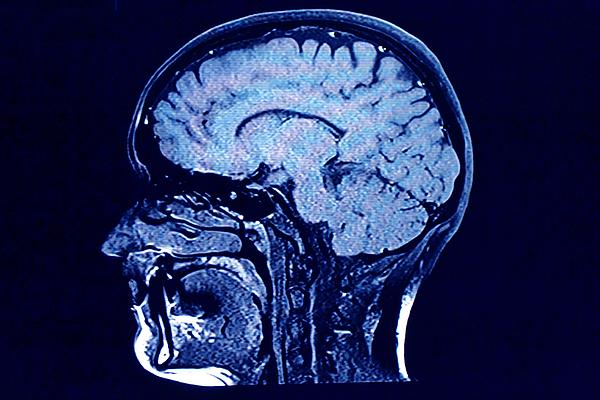 Brain Head Scan Photograph by Roxana Wegner