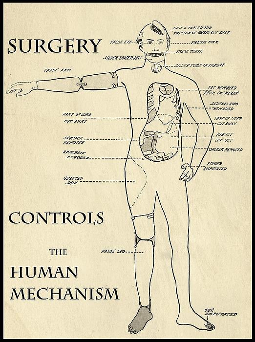 Medical Digital Art - Surgery Controls The Human Mechanism   1906 by Daniel Hagerman