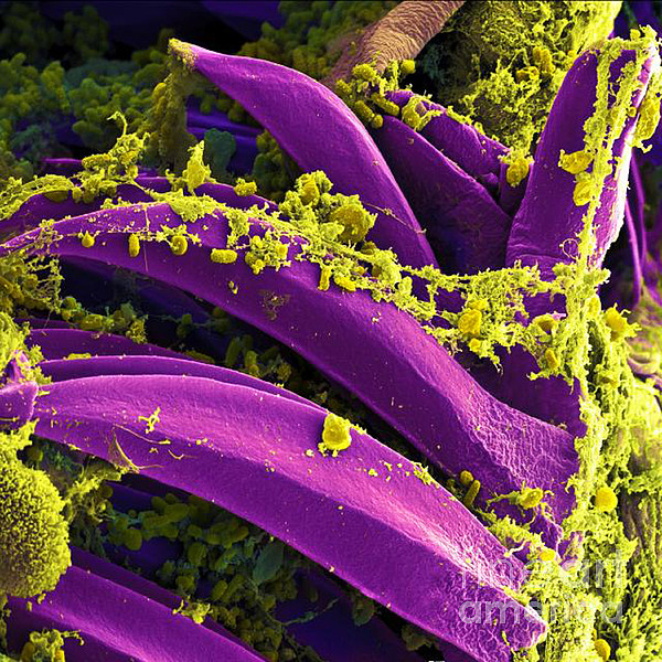 Microbiology Photograph - Yersinia Pestis Bacteria, Sem by Science Source