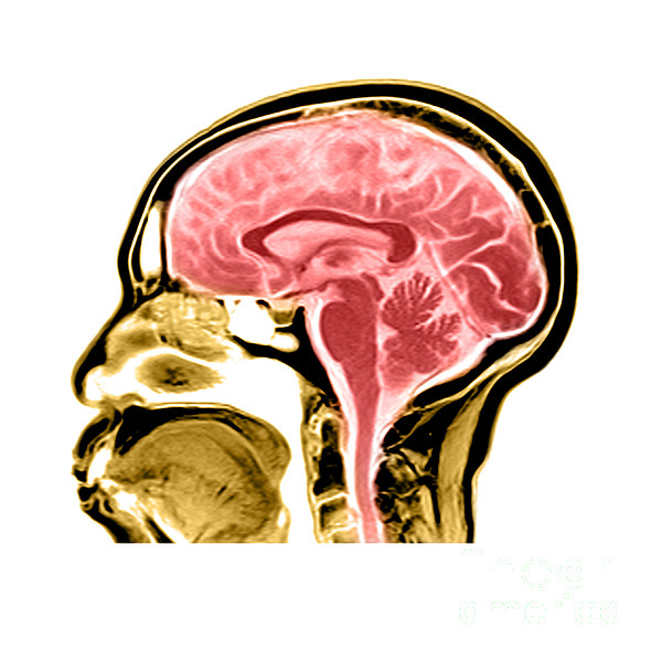 Anatomical Photograph - Sagittal View Of An Mri Of The Brain by Medical Body Scans