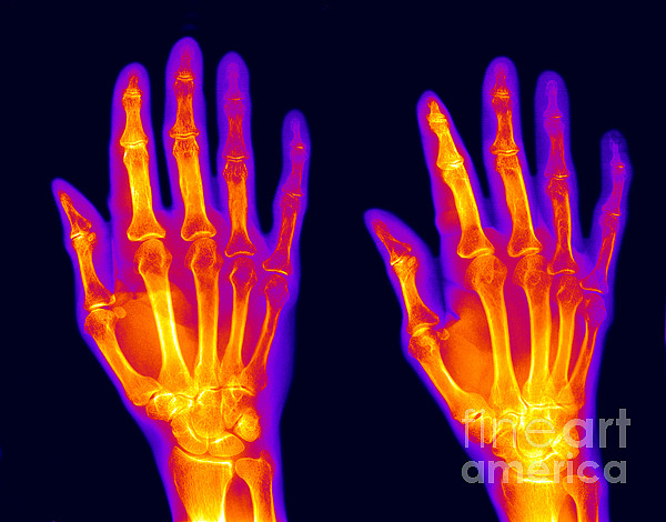 Hand Photograph - Normal Hand by Ted Kinsman