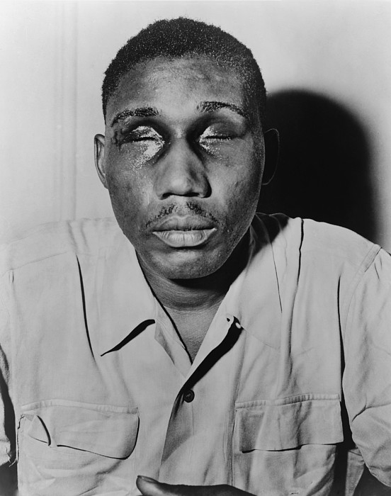 History Photograph - African American Man With Eyes Swollen by Everett