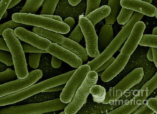 Microbiology Photograph - Escherichia Coli Bacteria, Sem by Science Source