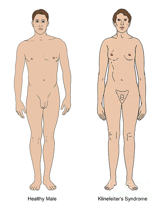 Person Photograph - Klinefelters Syndrome & Healthy Male by Science Source