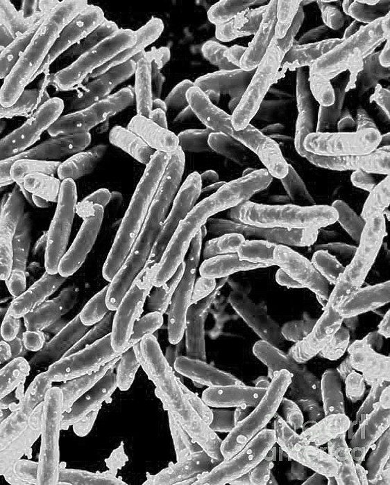 Microbiology Photograph - Mycobacterium Tuberculosis Bacteria, Sem by Science Source
