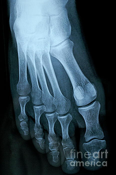 People Photograph - X-ray Image Of Mature Mans Feet by Sami Sarkis