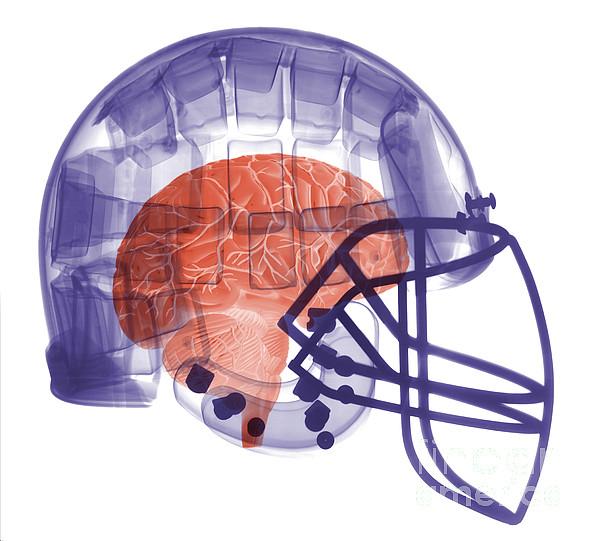 Football Helmet Photograph - X-ray Of Head In Football Helmet by Ted Kinsman