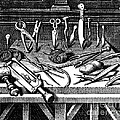 Surgical Equipment, 16th Century by Science Source