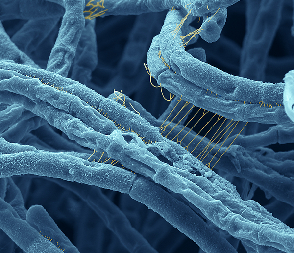 Sem Photograph - Anthrax Bacteria Sem by Eye Of Science and Photo Researchers