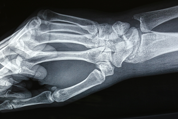 Close up of a hand and Wrist X-ray film Photograph by Douglas Sacha