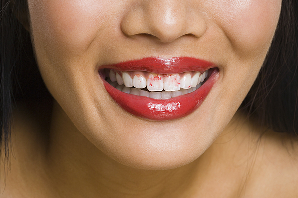 Close-up of a womans lips with lipstick on her teeth Photograph by Rubberball