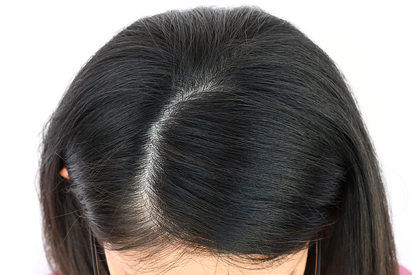 Cropped view of woman tops head with part of her thin hair, she had hair loss problem. Photograph by Boyloso