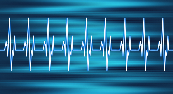 Heart Rate Line Photograph by Artpartner-images