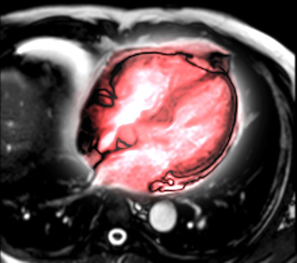 MRI heart or Cardiac MRI . Photograph by Mr.suphachai Praserdumrongchai