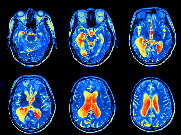 MRI scan image of brain Photograph by Akesak