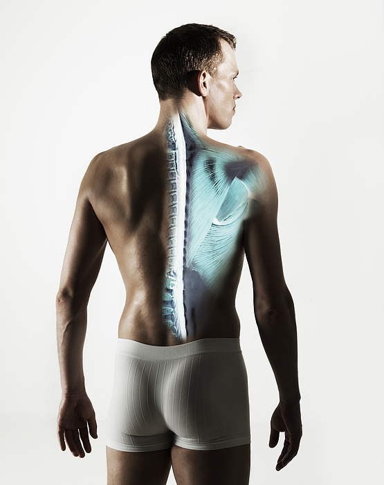 Standing male back with spine visible Photograph by Henrik Sorensen