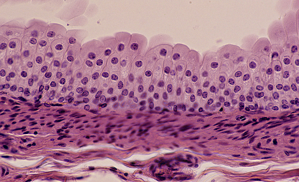 TRANSITIONAL EPITHELIUM, URETER, 100X Shows: many cell layers, cells near the surface that are pear-shaped, supporting connective below. Unstretched state. Also, found in the bladder. Photograph by Ed Reschke