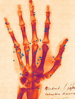Science Source - X-ray Of Gunshot In The Hand