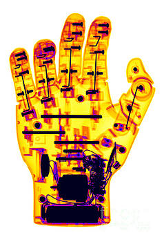 Ted Kinsman - Toy Robotic Hand X-ray