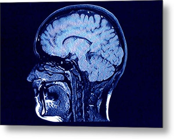 Brain Head Scan Metal Print by Roxana Wegner