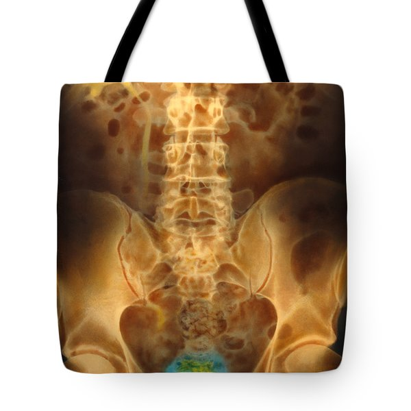 Empty Bladder Color Xray Urogram Tote Bag by SPL and Photo Researchers
