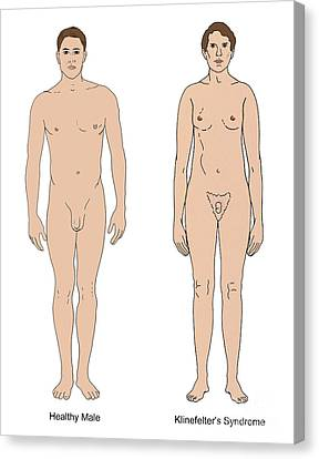 Klinefelters Syndrome & Healthy Male Canvas Print by Science Source