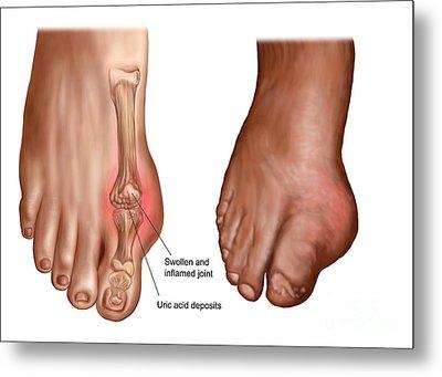 Anatomy Of A Swollen Foot Metal Print