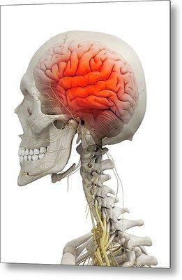 Human Brain Metal Print by Sciepro