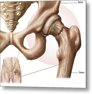 Anatomy Of Hip Fracture Metal Print by Stocktrek Images