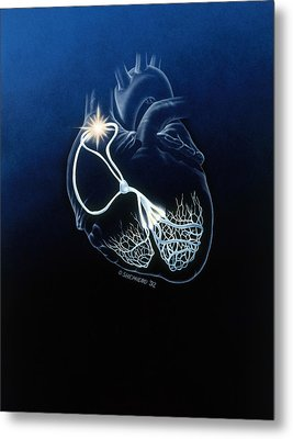 Heart Conduction System Metal Print by Bob L. Shepherd