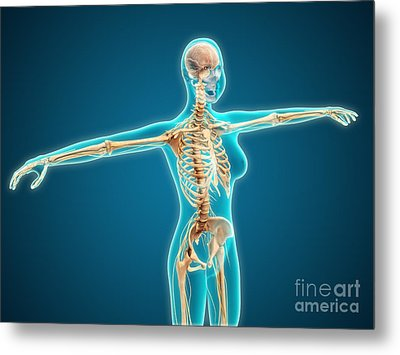 X-ray View Of Female Body Showing Metal Print by Stocktrek Images