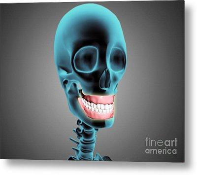 X-ray View Of Human Skeleton Showing Metal Print by Stocktrek Images