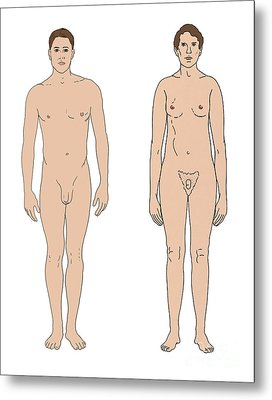 Klinefelters Syndrome & Healthy Male Metal Print by Science Source