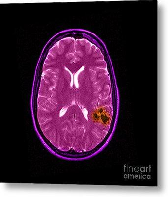 Mri Of Brain Avm Metal Print