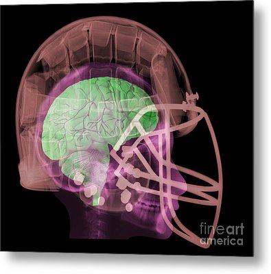 X-ray Of Head In Football Helmet Metal Print by Ted Kinsman