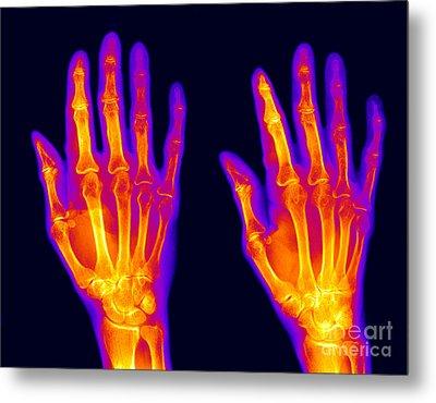 Normal Hand Metal Print by Ted Kinsman