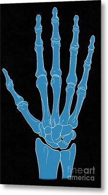 Hand And Wrist Bones Metal Print by Science Source