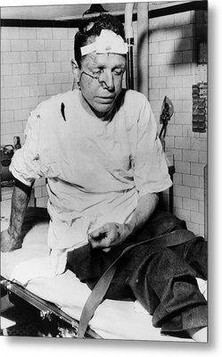 James Peck, Bleeding On A Hospital Metal Print