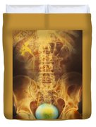 Full Bladder Color Xray Urogram Duvet Cover